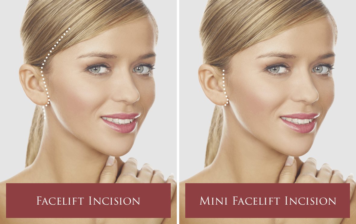 Mini Facelift in Seattle | The Stella Center for Facial