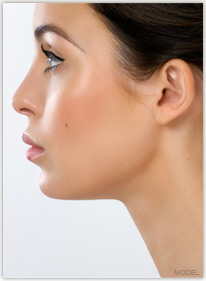 Neck and Chin Liposuction Model Image