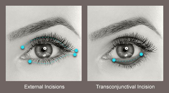 Eyelid Surgery Model Image