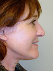 Mini Facelift After Photo | Seattle, Washington | The Stella Center for Facial Plastic Surgery