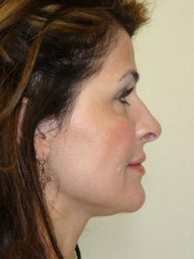 Neck & Chin Liposuction in Seattle | The Stella Center for Facial