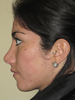 Rhinoplasty After Photo | Seattle, Washington | The Stella Center for Facial Plastic Surgery