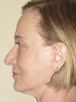 Mini Face Lift After Photo | Seattle, Washington | The Stella Center for Facial Plastic Surgery