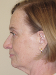 Mini Face Lift Before Photo | Seattle, Washington | The Stella Center for Facial Plastic Surgery