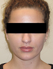 Rhinoplasty Before Photo | Seattle, Washington | The Stella Center for Facial Plastic Surgery