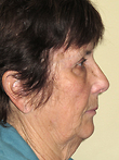 Mini Facelift Before Photo | Seattle, Washington | The Stella Center for Facial Plastic Surgery